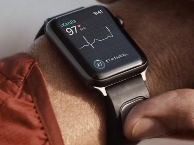 KardiaBand lets you monitor heart health from any Apple Watch