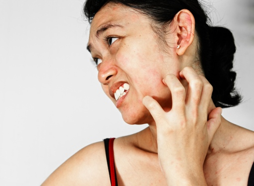 woman with allergic contact dermatitis
